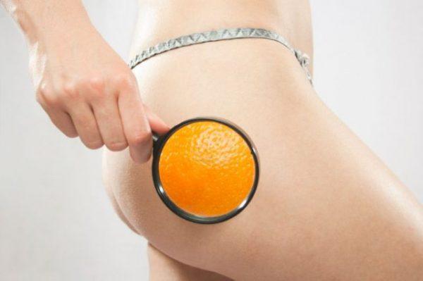 cellulite effetto buccia d'arancia